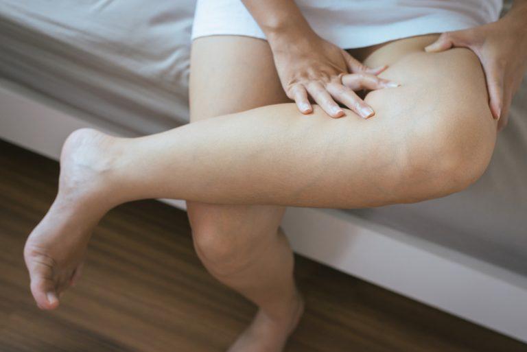 Krampfadern: Ursachen und Risiken bei Venenerkrankungen