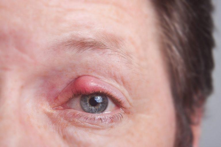 Ein Gerstenkorn homöopathisch behandeln