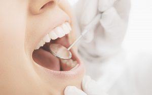 Vor diesen Tricks der Zahnärzte sollten Sie sich hüten!