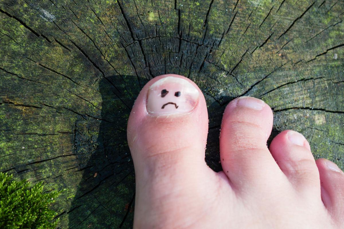 Fußpilz: Diese Hausmittel können Ihnen helfen!