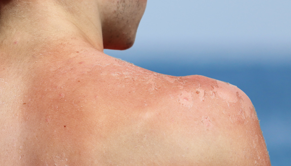 Hilfe für Ihre Haut - Tipps gegen akuten Sonnenbrand