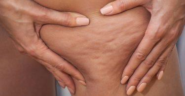 Wie Sie mit einer Reflexzonenmassage Cellulite bekämpfen können