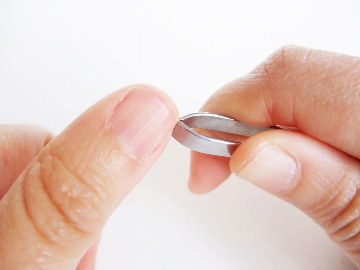 Splitter entfernen mit homöopathischer Unterstützung