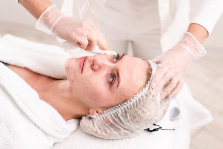 Pickel und Akne: Eine Gesichts-Reflexzonenmassage schafft Abhilfe