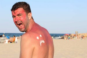 Erste Hilfe bei Sonnenbrand