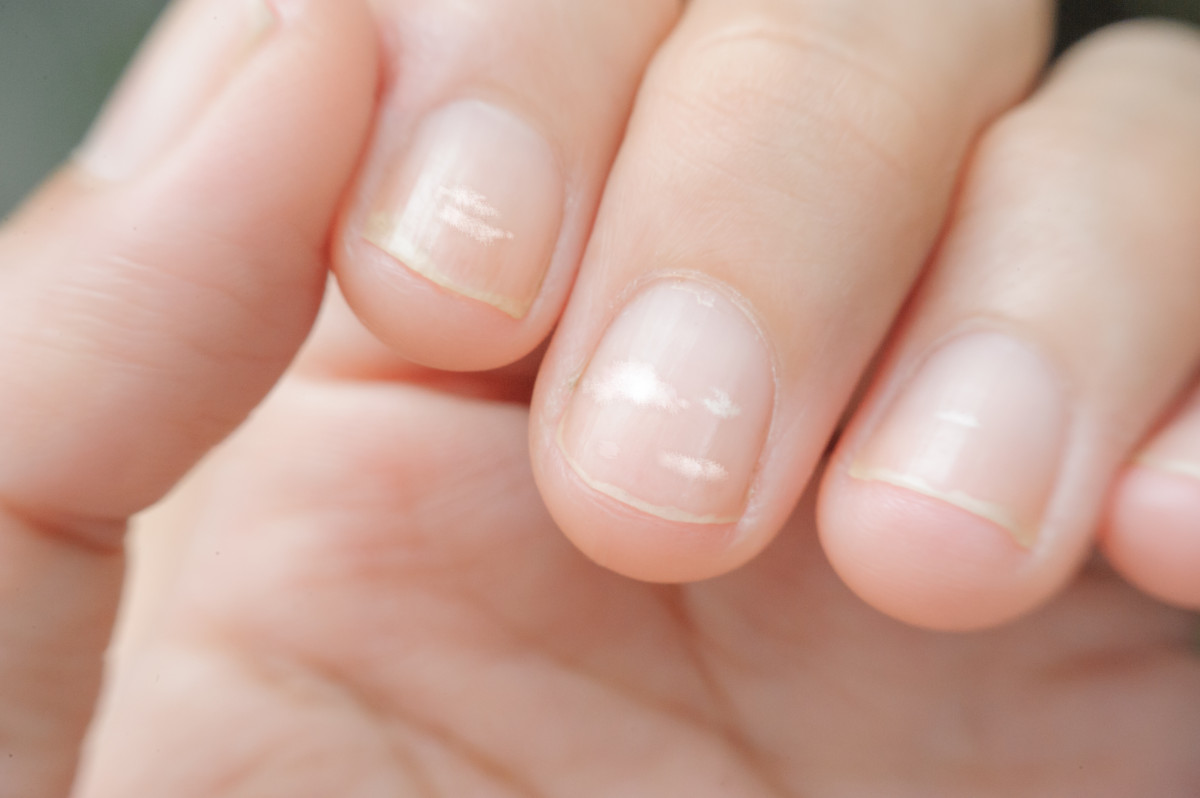 Die größten Irrtümer: Helle Flecken auf den Fingernägeln weisen auf Kalziummangel hin