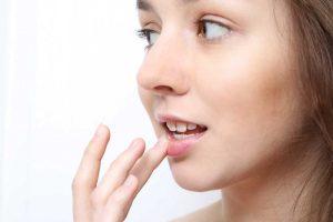 Herpes in der kalten Jahreszeit? Homöopathie schafft Abhilfe!