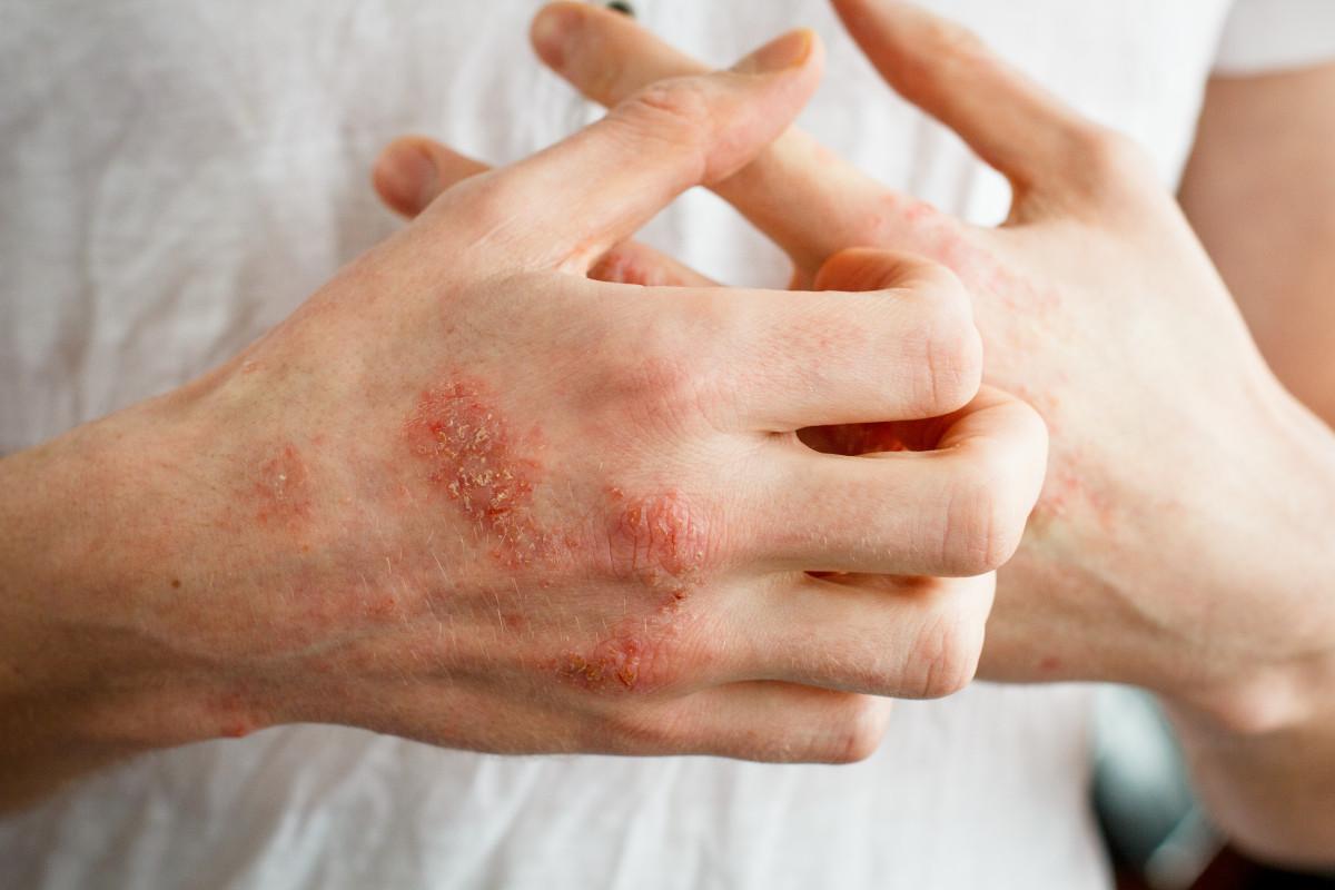 Neurodermitis – Ursachen und Symptome dieser Hauterkrankung