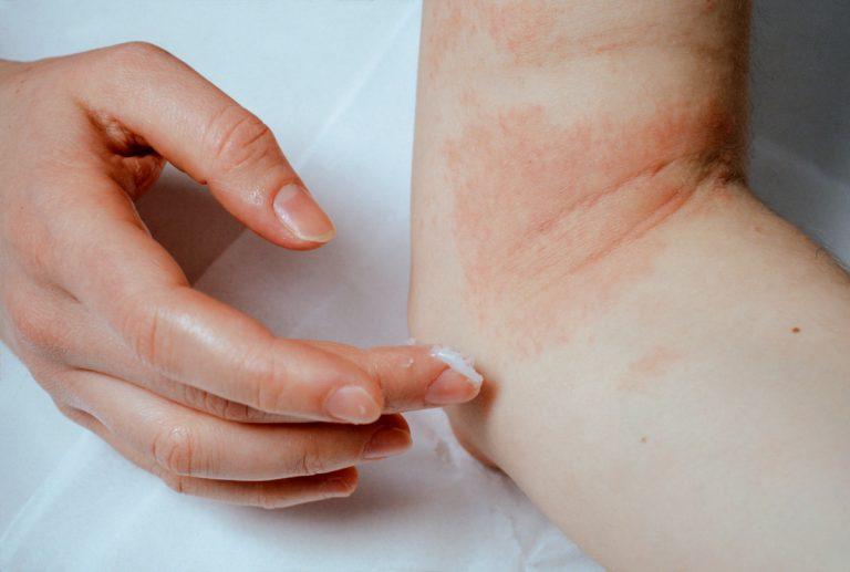 Neurodermitis – so sieht die optimale Behandlung aus