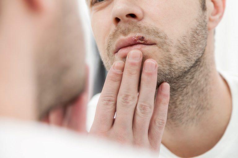 Aciclovir hilft gegen Herpesbläschen