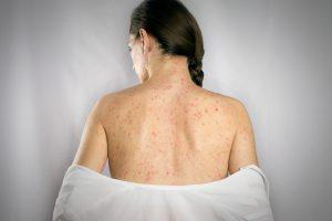 Windpocken oder Gürtelrose? Homöopathie wirkt stärker als der Erreger!