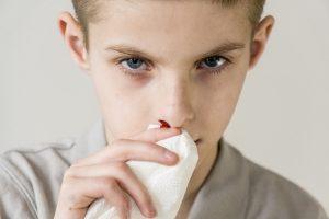 Nasenbluten und das Gefühl der Scham