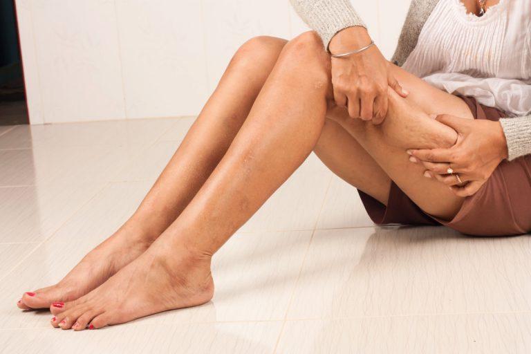 Cellulitis homöopathisch behandeln