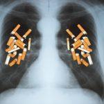 Raucherlunge mit Schüßlersalzen behandeln