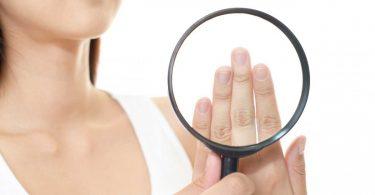 Nagelbettentzündung - Achten Sie auf die psychischen Auslöser