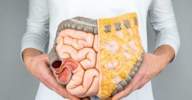 Colitis ulcerosa – Dickdarmentzündung: Symptome und Therapie
