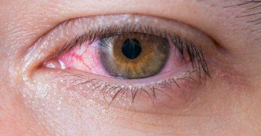 Das hilft bei geröteten Augen