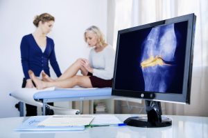 Arthrose – wie sieht die Behandlung aus?