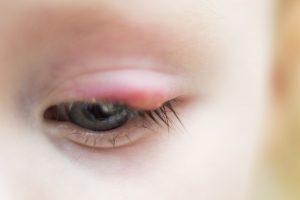 Gerstenkorn bei Kindern behandeln