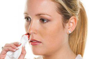 So stoppen Sie Nasenbluten