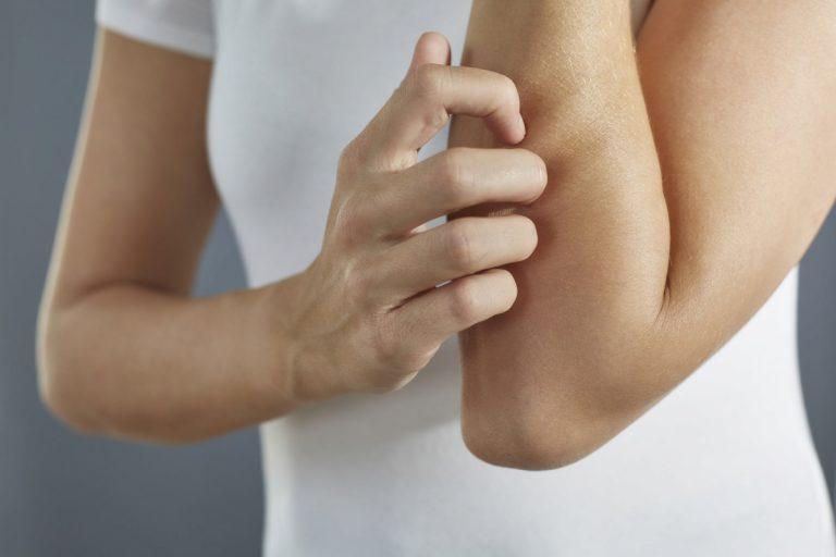 Neue Therapie gegen schwere Neurodermitis bei Erwachsenen