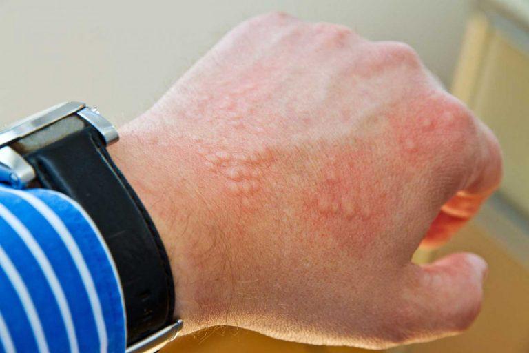 Urtikaria (Nesselsucht): Behandeln Sie auch die psychischen Ursachen