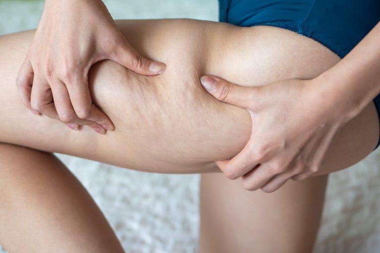 Endlich straffe Haut – Was hilft wirklich gegen Cellulite?