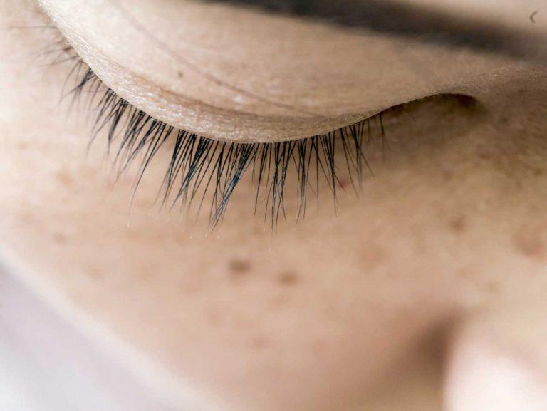 Pigmentflecken – Arten, Symptome und Vorbeugungsmaßnahmen