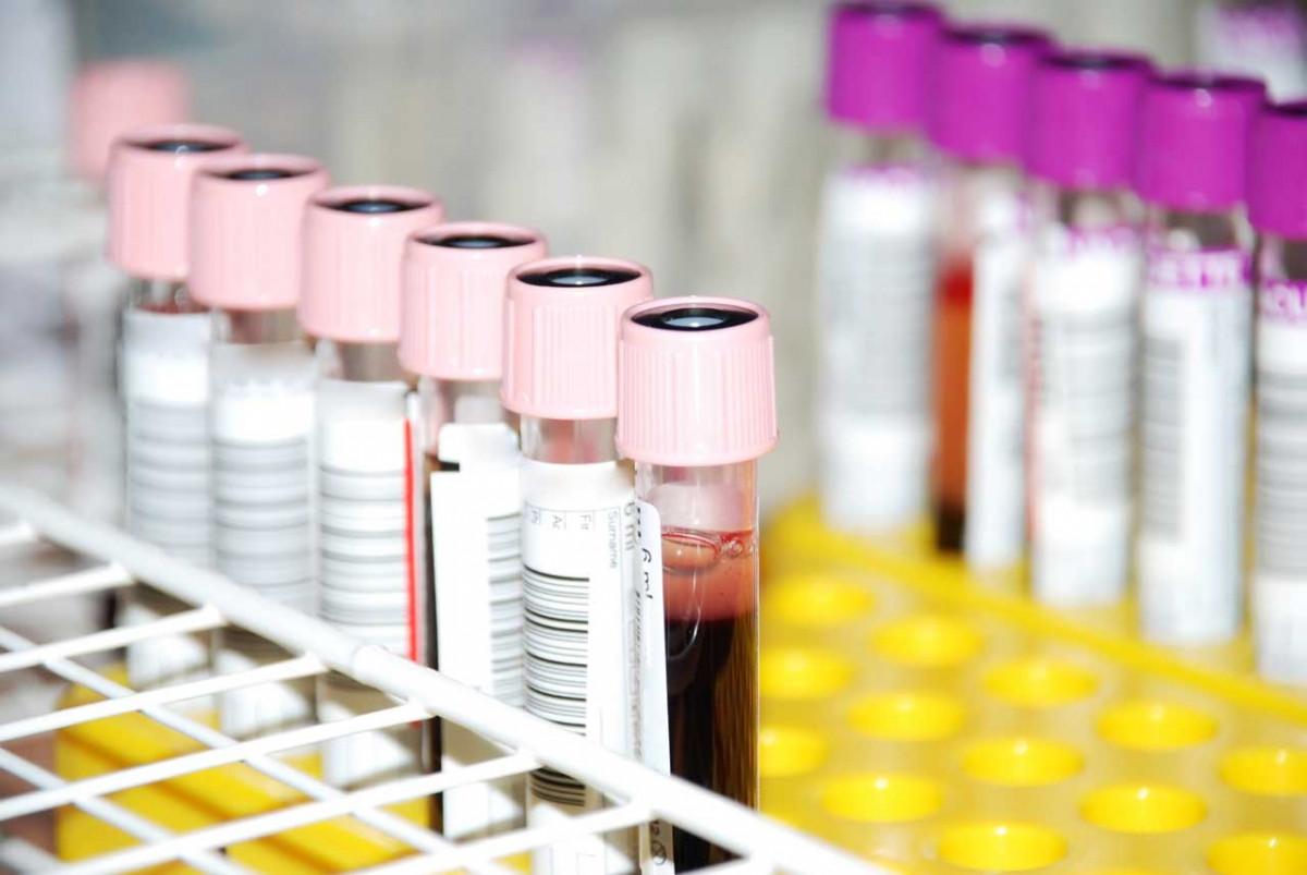 Blutgruppendiät - eine Alternative?