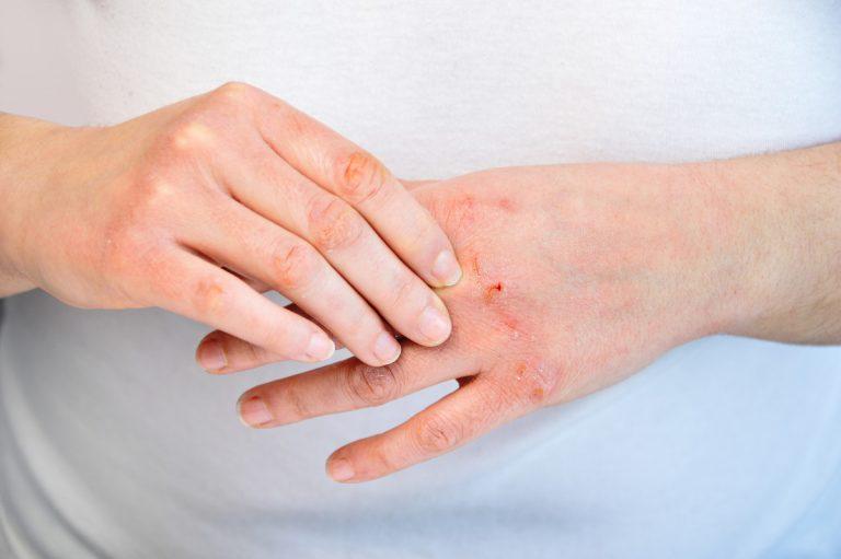 Natürliche Hausmittel gegen trockene, rissige Hände