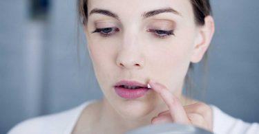 So können Sie Lippenherpes durch Stress vorbeugen