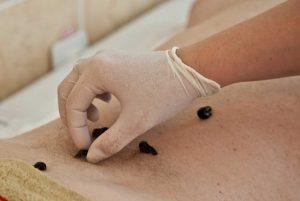 Blutegel: Wie werden sie verwendet?