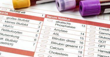 Wie Cholesterin das Herz und den Kreislauf schädigen kann