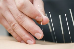Beispiele für typische Akupressurpunkte zur Schmerzlinderung