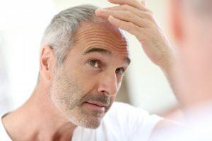 Welche Behandlungsmethoden helfen Männern gegen Haarausfall?
