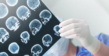 Schädel-Hirn-Trauma: Schweregrad und Vorbeugung