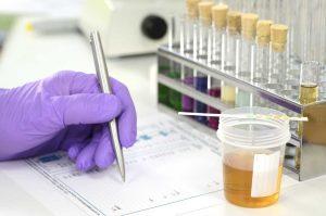 Harnwegsinfekte – was steckt dahinter?