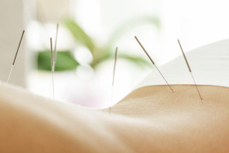 Migräne: Nutzen Sie Akupunktur als Vorbeugung