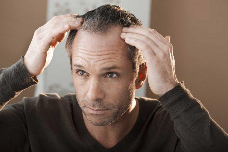 Haarausfall: Bringt eine Glatze das Herz in Gefahr?