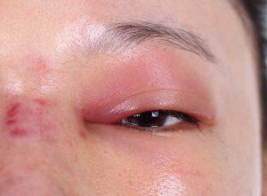 Schnelle Hilfe bei geschwollenen Augen