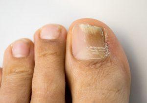 Nagelpilz – Was können Sie gegen das unschöne Leiden tun?