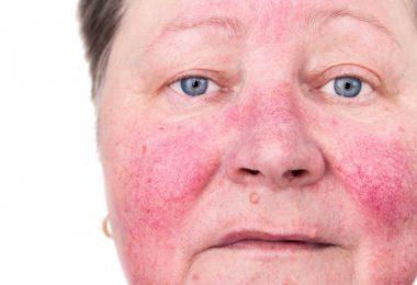 Rosazea – Symptome und Behandlung