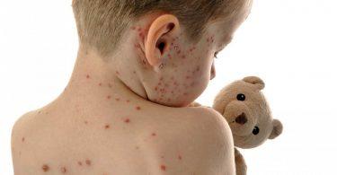 Kinderkrankheit Masern mit Schüßlersalzen behandeln