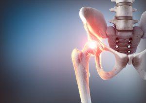 Hüftdysplasie homöopathisch behandeln