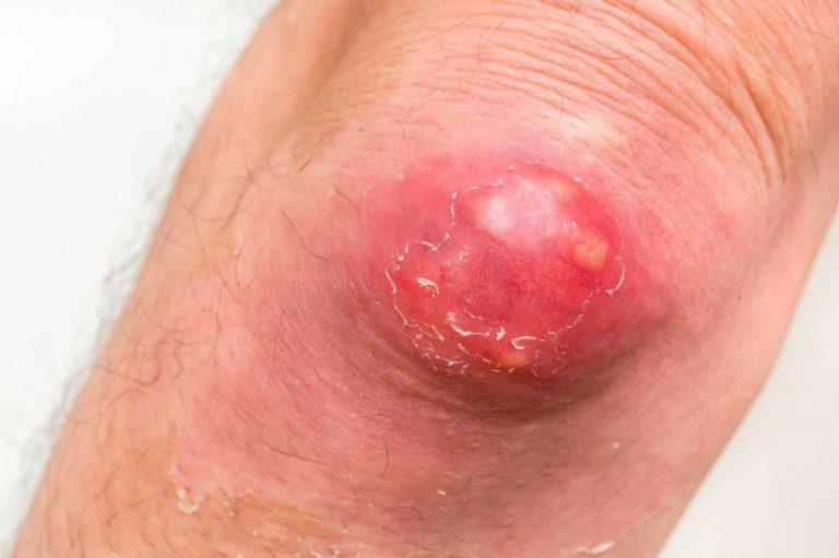 Furunkel homöopathisch behandeln