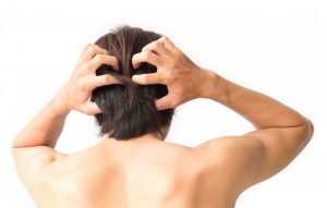 Was tun bei juckender Kopfhaut?