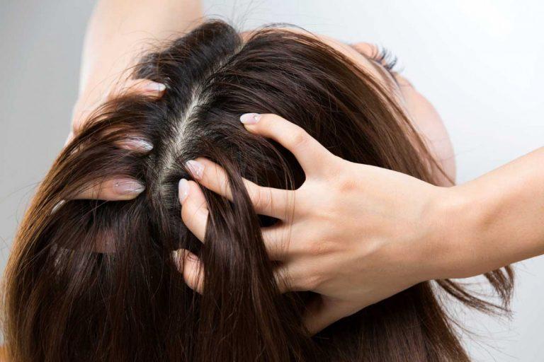 Juckende Kopfhaut: Vorbeugemaßnahmen und erste Hilfe