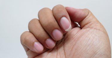 So können Sie eingerissene Fingernägel reparieren