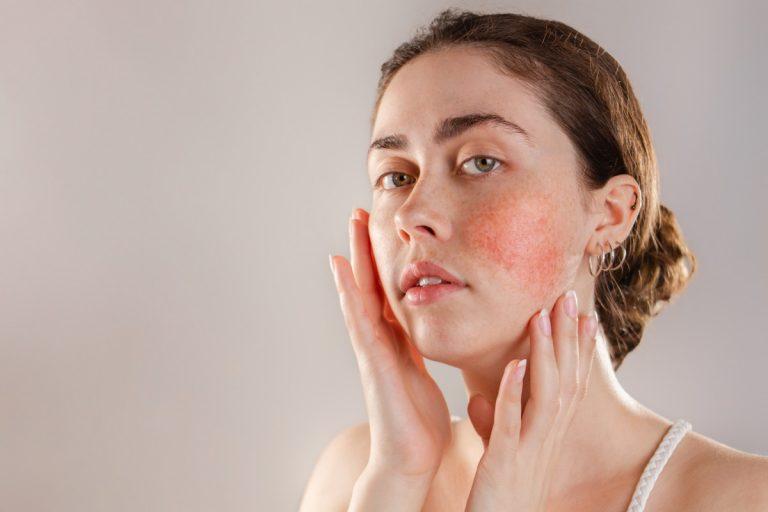 Hautrötungen durch Rosacea und Couperose mindern und richtig abdecken