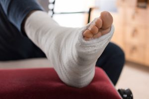 So behandeln Sie Verletzungen der Knochen und der Knochenhaut homöopathisch